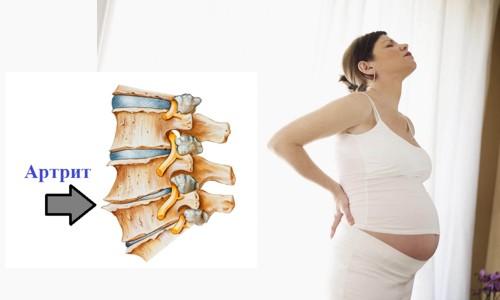 ревматоидный артрит при беременности