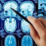 Анализ крови болезнь Паркинсона