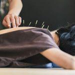 Иглоукалывание против боли