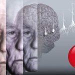 Дефицит витамина А связан с болезнью Альцгеймера