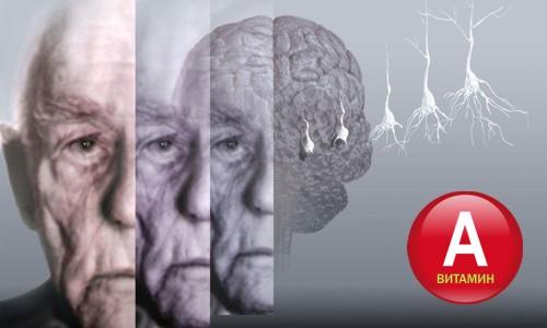 Витамины при болезни Альцгеймера