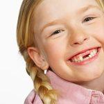Красивая улыбка начинается с молочных зубов